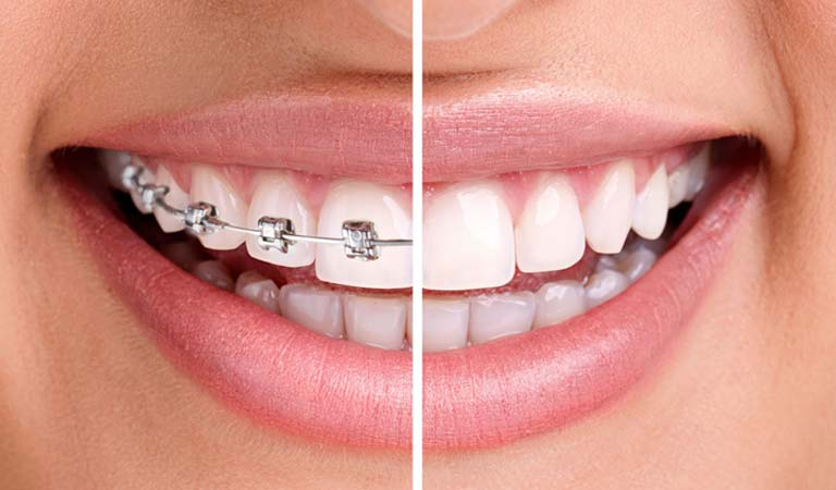 A comparison of Invisalign® to traditional braces.